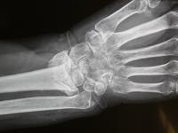 Χιλιάδες αναπηρίες χεριών αποτρέπει κάθε χρόνο η αρθροπλαστική καρπού, που πλέον γίνεται και στην Ελλάδα !